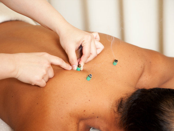Moxibustion Brisbane