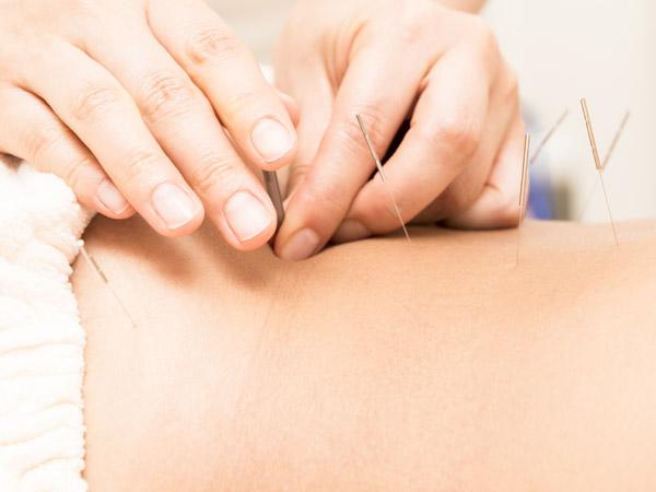 Toyohari & Kiiko Style Acupuncture