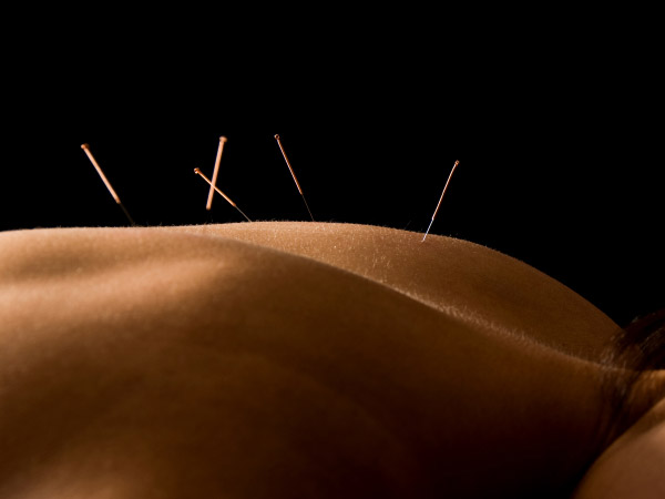 Acupuncture Services Brisbane